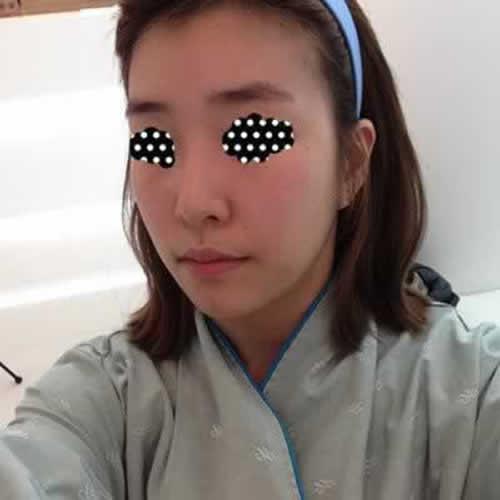 耳软骨复合隆鼻定型效果好吗?在合肥艺星做的我还挺满意的。