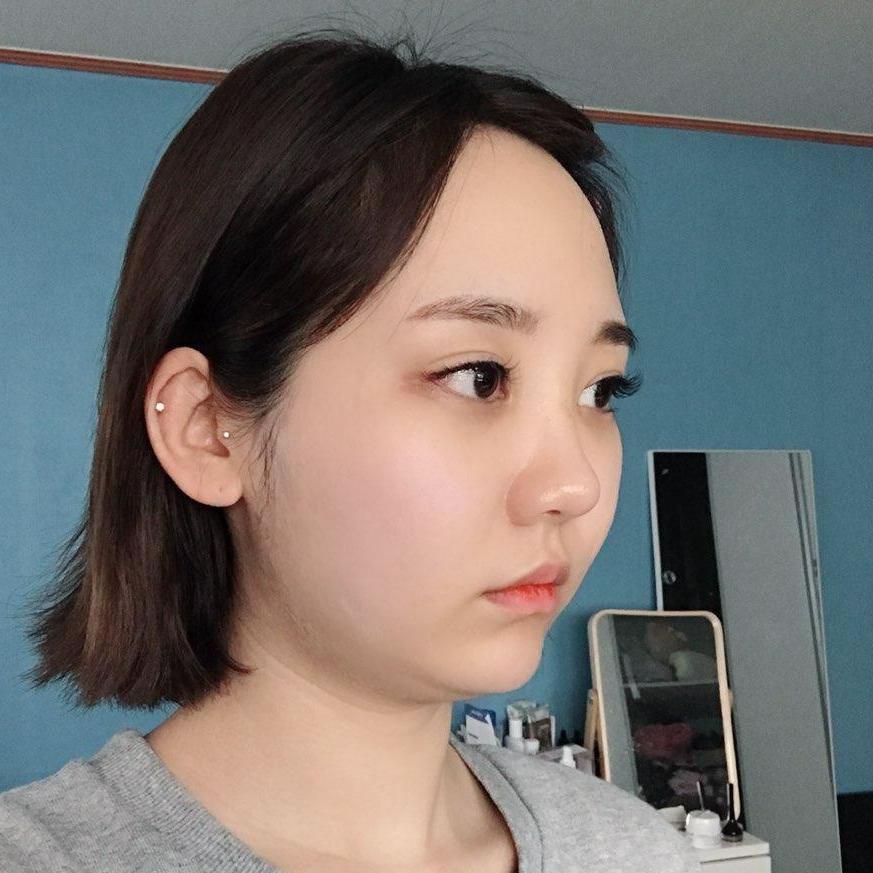 韩国NB整形外科下巴吸脂术去双下巴术后恢复过程全纪录