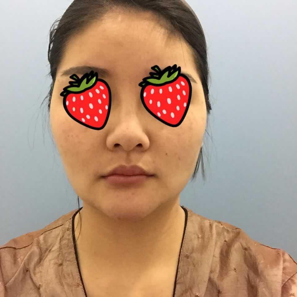 特意去韩国做了颧骨内推手术和面部吸脂之后,半年之后我也是小可爱了。