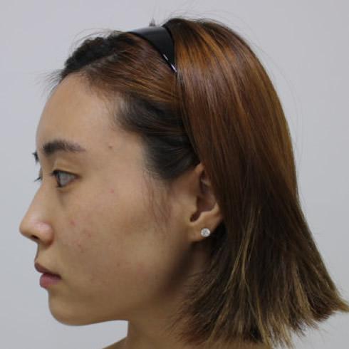 我在韩国做完下颌角整形手术,半年后的我也是小仙女一枚。