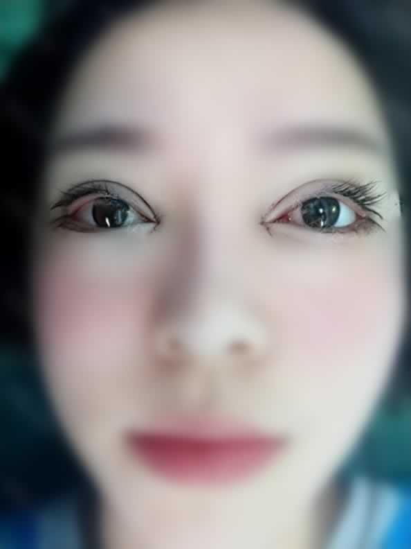 广州做眼综合手术3万可以吗这个费用?姐妹们做的具体价格可以透露下么