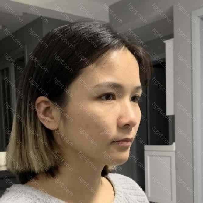 我提前一个月打了瘦脸针