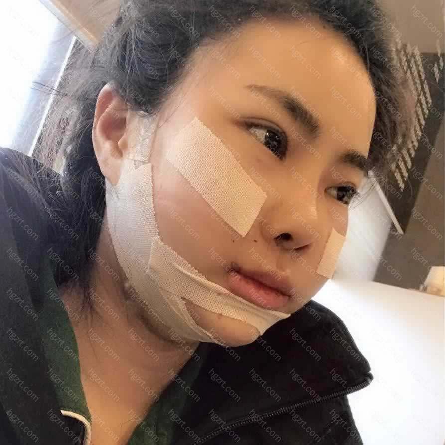 手术后的第三天了上午去了他们医院做了术后消肿