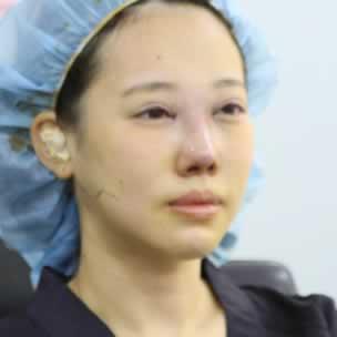 我在韩国做了鼻综合手术感觉还可以,主要是之前的鼻子不是那么的完美