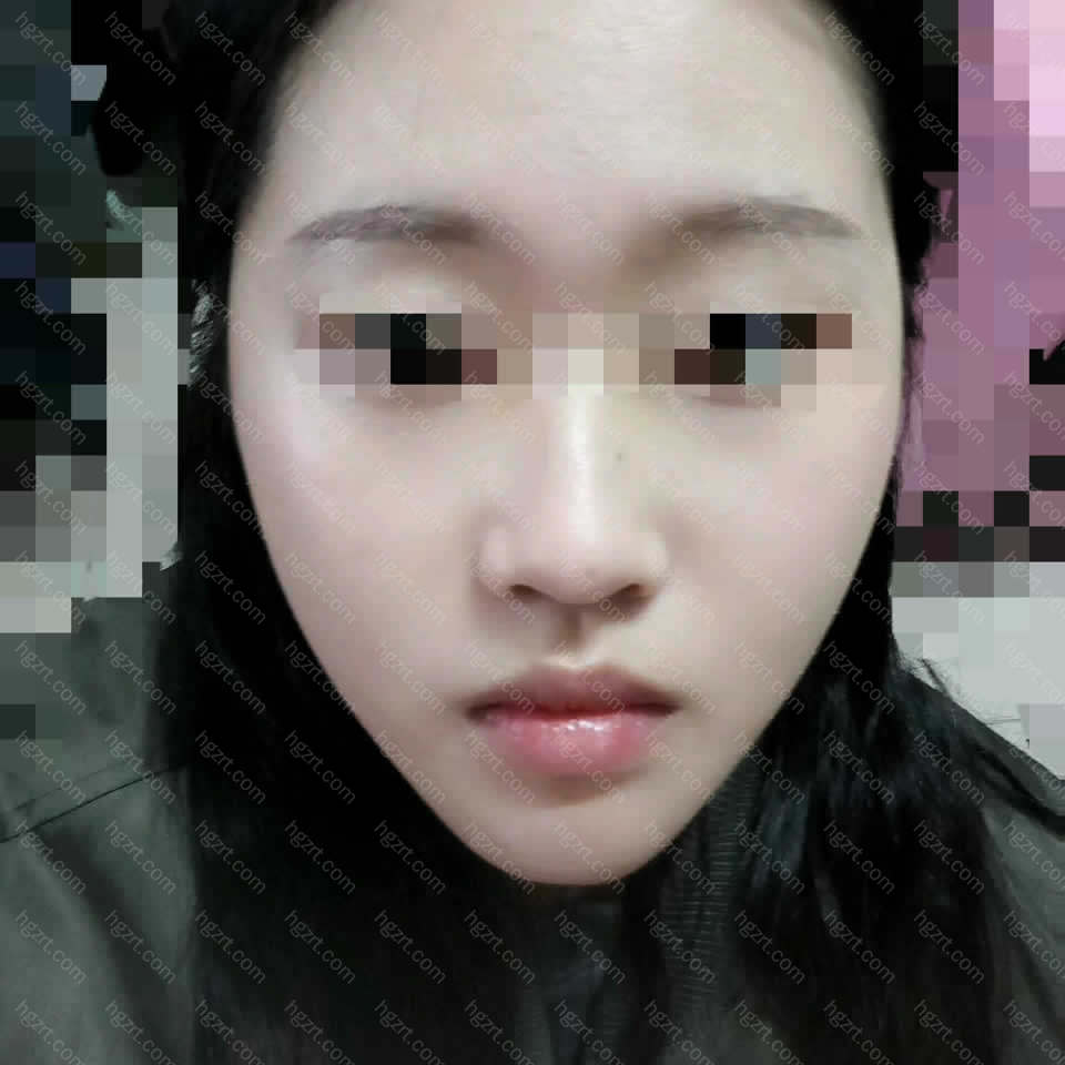 术后第二天拆掉头套的样子~民宿的姐姐们都说确实脸小了