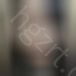 快来看我在韩国世美整形医院做的硅胶隆鼻术后效果
