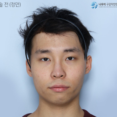 嘴凸颧骨高有没有什么好的方法改善?很幸运自己选择在韩国做了颧骨矫治手术现在我也是帅气的小哥哥一个。
