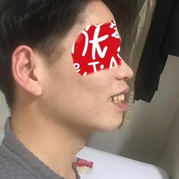 韩国嘴凸上下颚矫正手术配合牙套牙齿矫正让我彻彻底底的发生了改变。