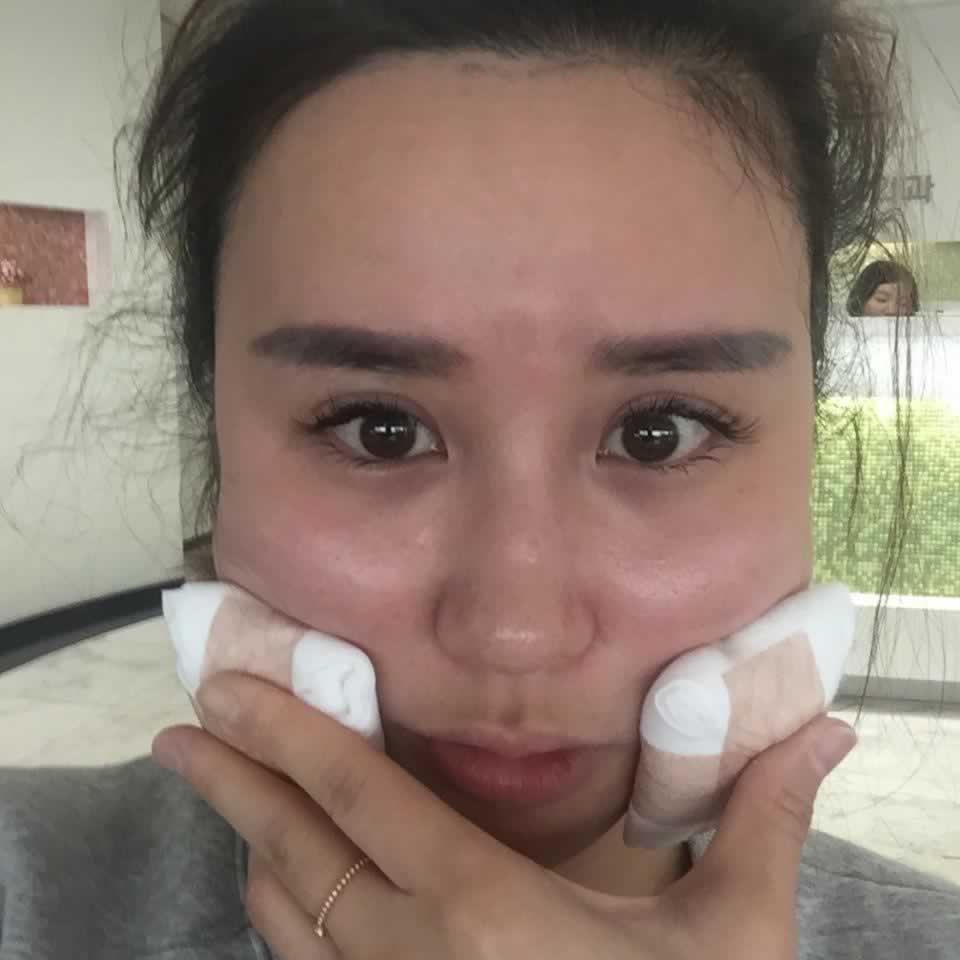 韩国注射瘦脸针效果怎么样呢?我的亲身经历告诉你效果不错。