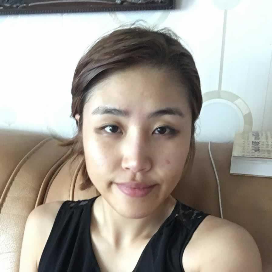 韩国哪个医院可以做下颌角切除手术?有保障的整形医院求推荐。
