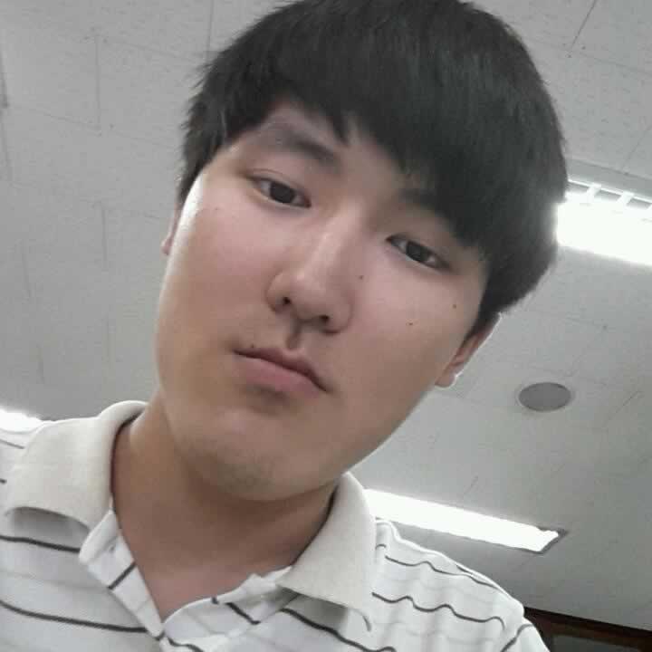 地包天怎么矫正?来看看我在韩国做的下颚前突地包天矫正手术效果怎么样?