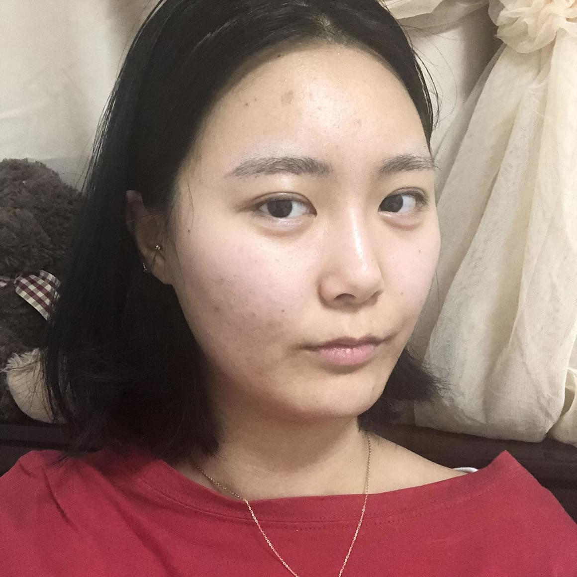 任谁看过我在韩国i want医院做的鼻中隔软骨隆鼻,都说好?