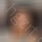 有人说做鼻部多项会留疤,但我在韩国蕾切尔医院做后就没有担心过疤痕这回事