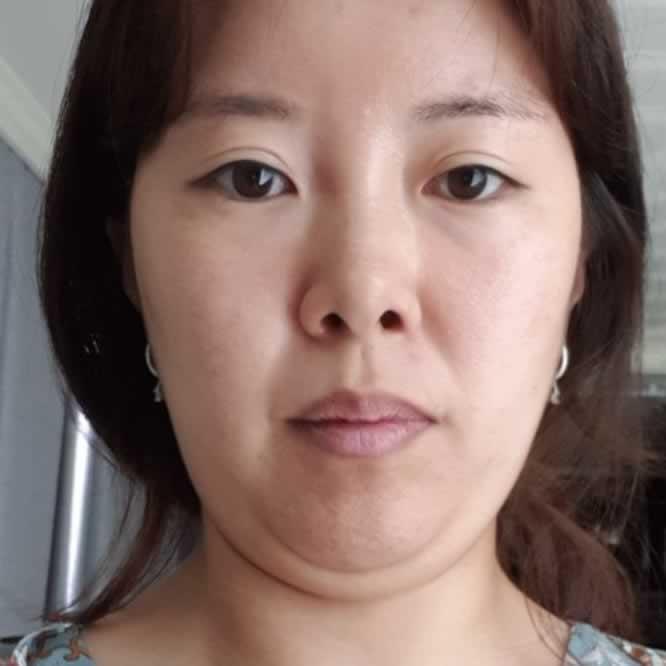 老阿姨的我去韩国做了双下巴+下颌缘面吸70天之后,我超级开心,韩国医院值得推荐。