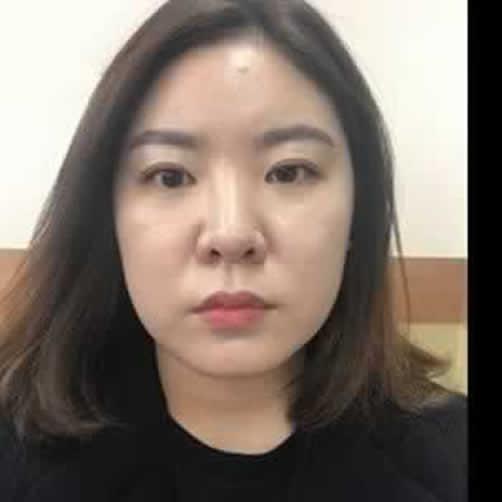 终于忍受不了大饼脸去韩国做了取颊脂垫瘦脸之后,你们觉得怎么样?