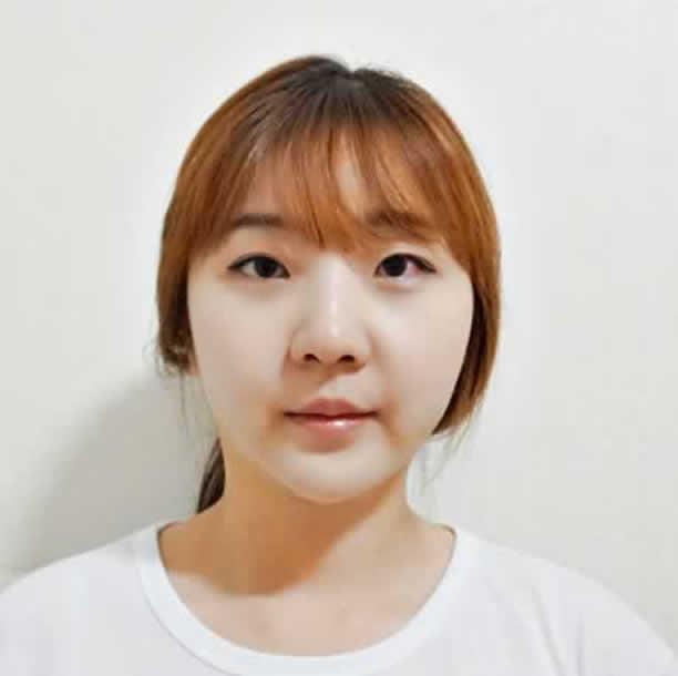 在韩国做面部吸脂手术会反弹吗?我完全没有担心的必要。