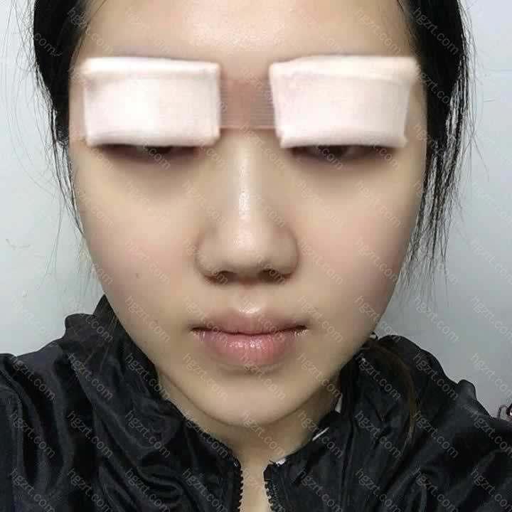 这次没有选择切开的双眼皮手术