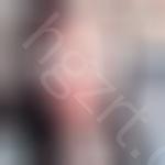 之前陪闺蜜在韩国jk整形外科医院做眼睛不错,这次我果断在这做了颧骨颧弓手术