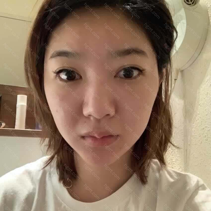 这次为了来韩国做鼻子