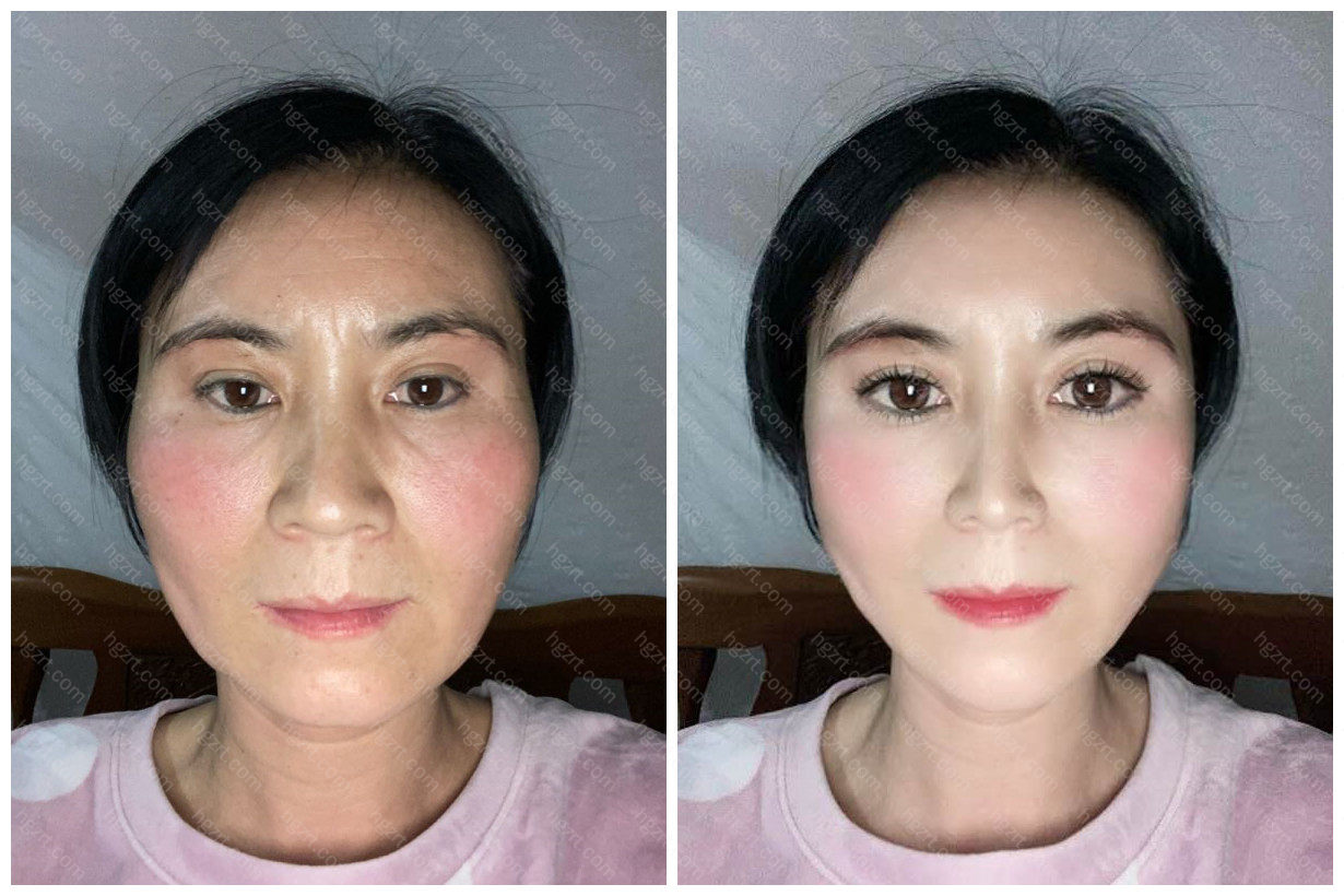 这位大姐姐模拟眼部修复手术和埋线提升之后