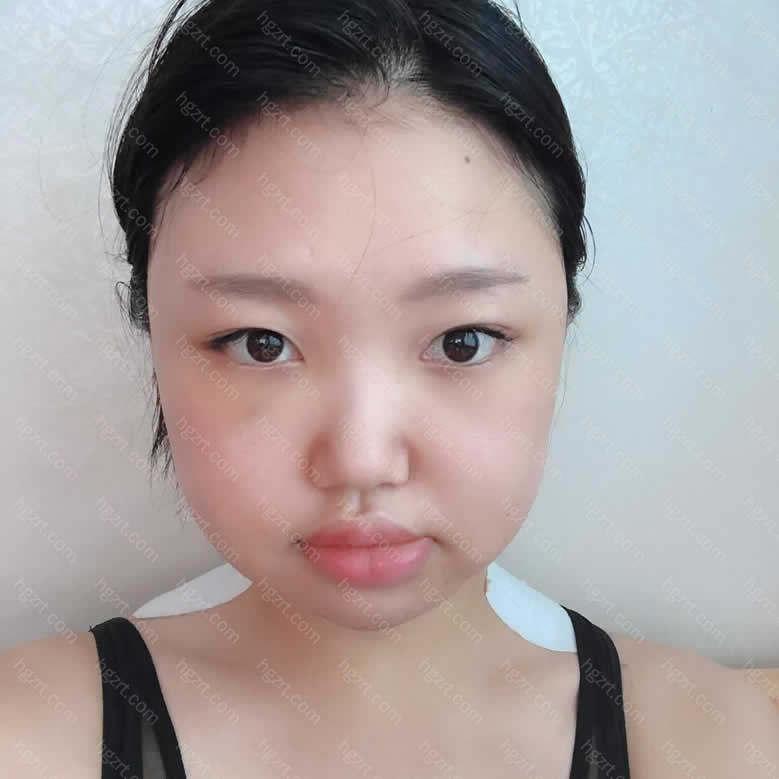 这几天因为一直看自己的脸都看不出来我现在是肿的更严重还是消肿了