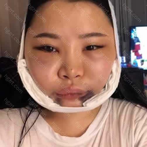我手术后第二天的浮肿真的是没法说