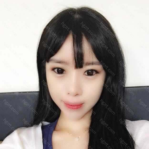 【颧骨颧弓整形术第60天】在韩国伊美芝做完轮廓手术有两个月了