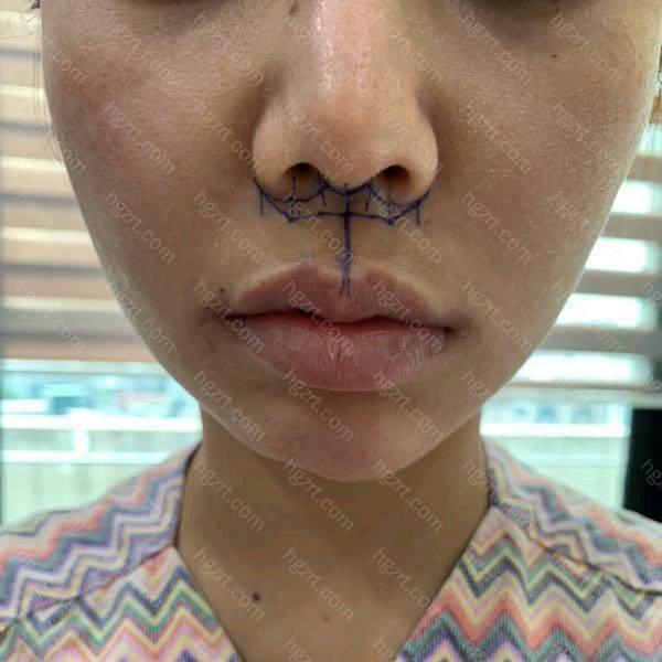 手术的时候是从鼻子下面这里弄一个切口