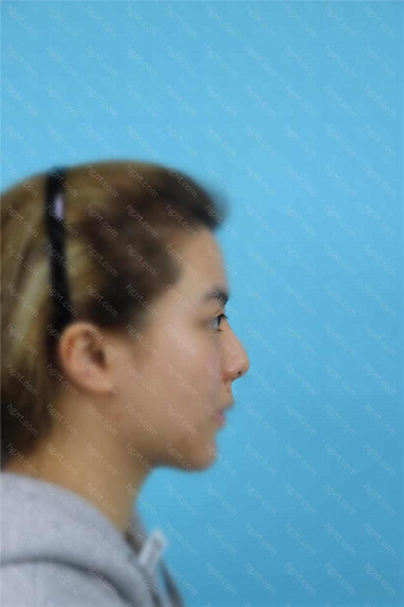 我是找北京美莱医疗美容医院欧阳春医生做的隆鼻