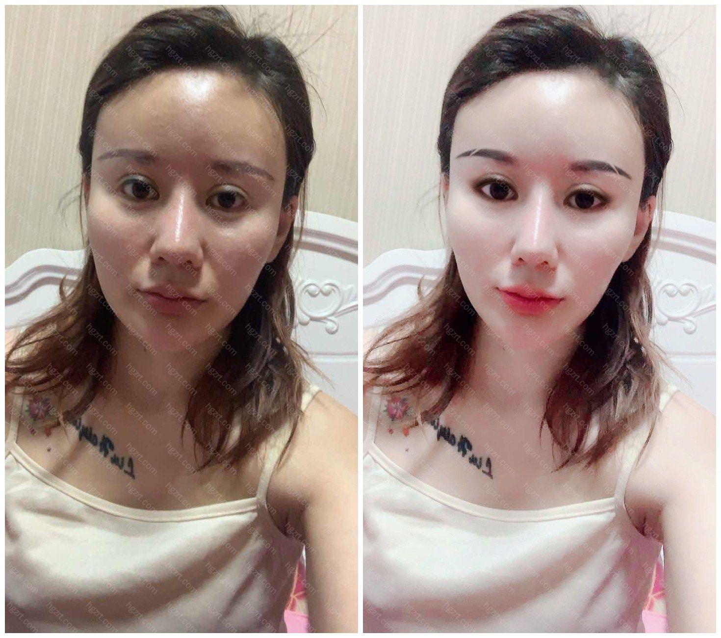 模拟的鼻部多项和Vline瓜子脸手术效果图