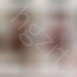 给姐姐模拟的鼻部多项和Vline瓜子脸手术效果图。