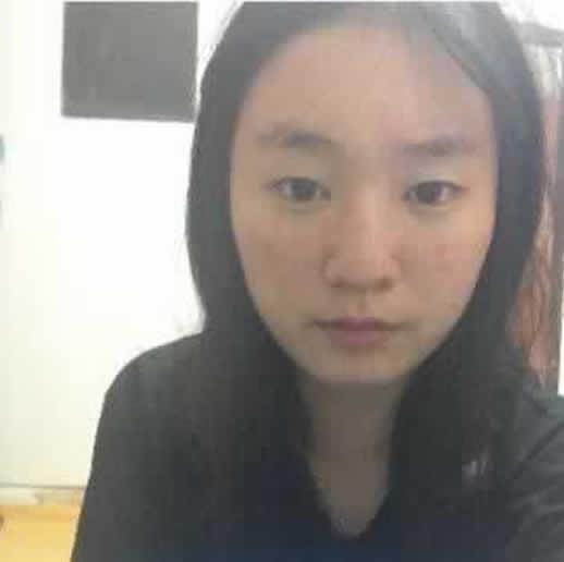 广州联合丽格医疗美容门诊部做点阵激光5个月之后效果图,棒不棒你说了算!