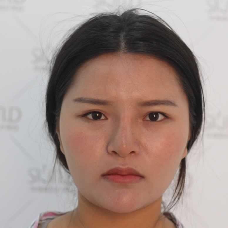 重庆徐铎丽格鼻部多项怎么样,我做完手术后,对现在的样子非常的满意。