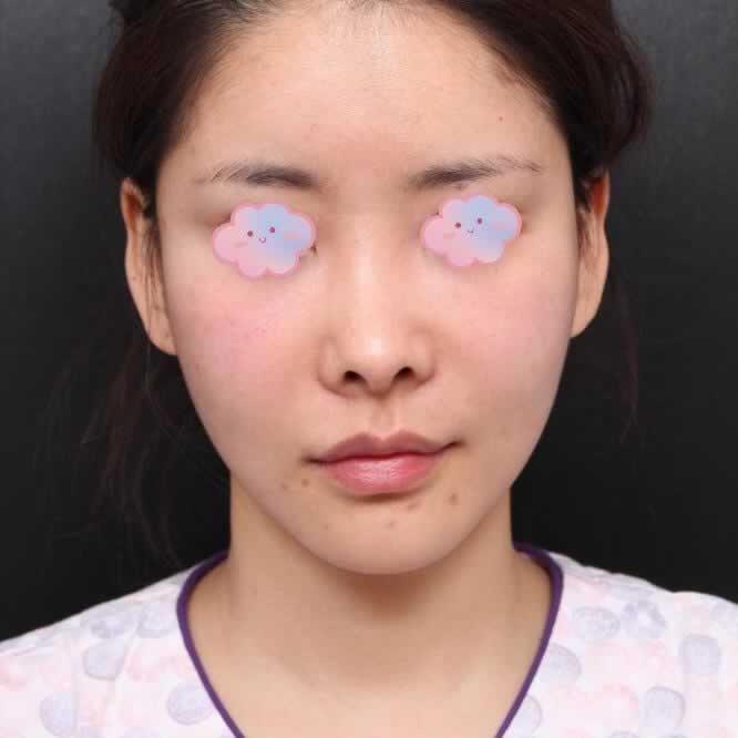 长沙梵童医疗美容硅胶隆鼻做过有失败的吗?我做完之后开心死了现在就是仙女。