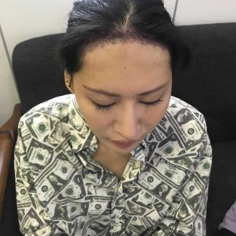 广州青逸植发做种植发际线会有后遗症吗?看我做完后又年轻了很多。