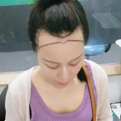 我在广州倍生做种植发际线手术,效果让我十分满意,现在已经完全告别之前的样子了。