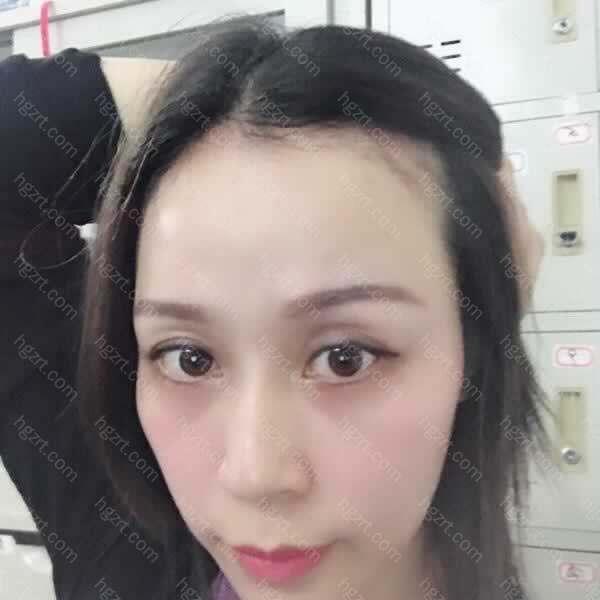 术后客户时刻的慰问我的头发情况以及告知脱落期的一个过程