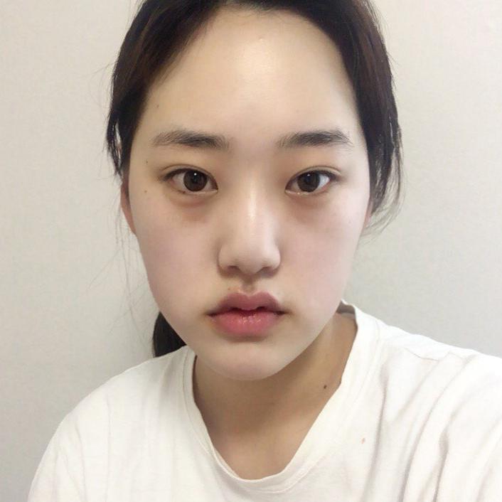 V-LINE瓜子脸+鼻部多项手术终于让我让我告别的黄瓜脸,简直爱上了现在的效果。