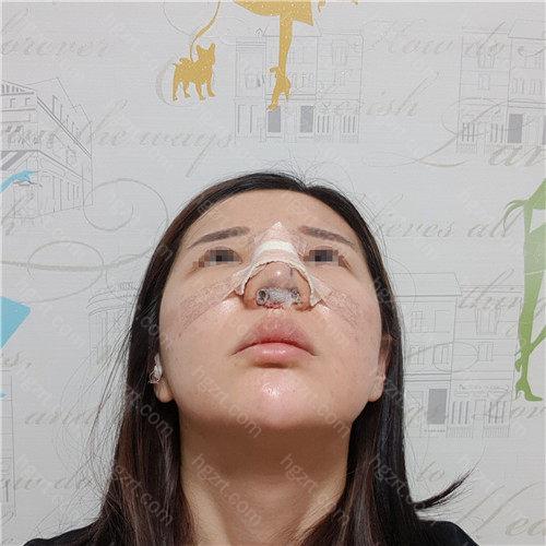前几天还因为鼻子不是特别的通气