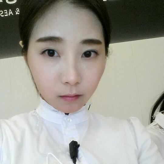 V-LINE瓜子脸手术怎么样,你看我在上海艺星做完手术后变化有多大。