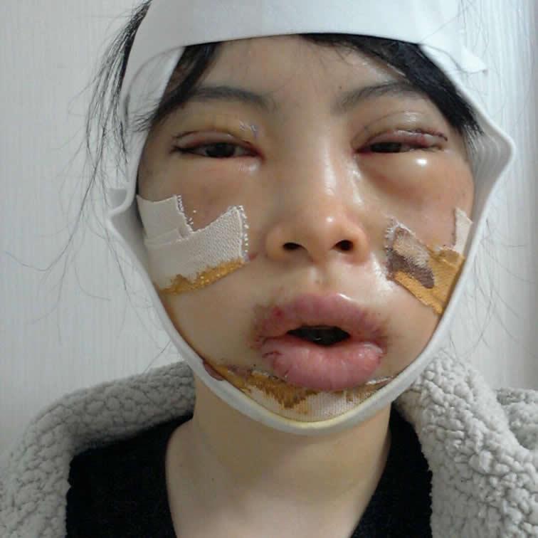 下颚前突/地包天的手术效果彻底改变了我之前的样子,现在真是太拟迷人了。