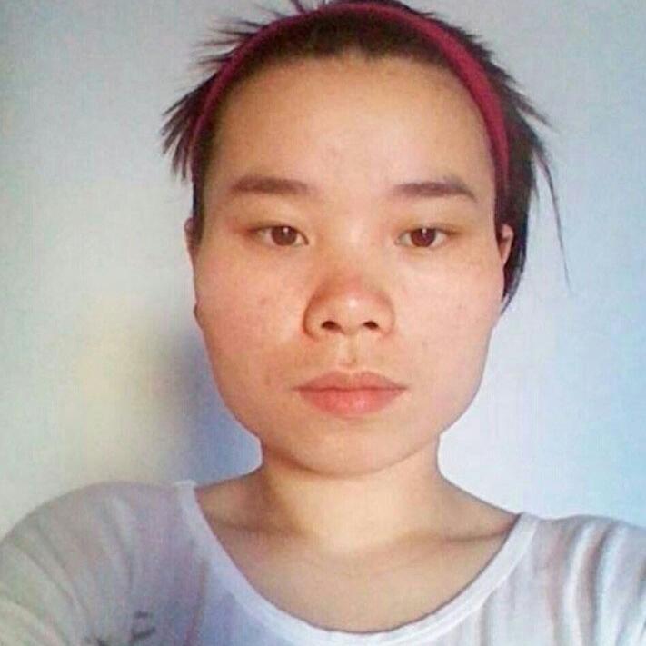 自体脂肪全脸填充、轮廓和眼部多项手术让我从丑小鸭变成了美丽迷人的白天鹅。