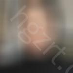 之前体验永州倾城医美整形技术还行这次做了去黑眼圈手术