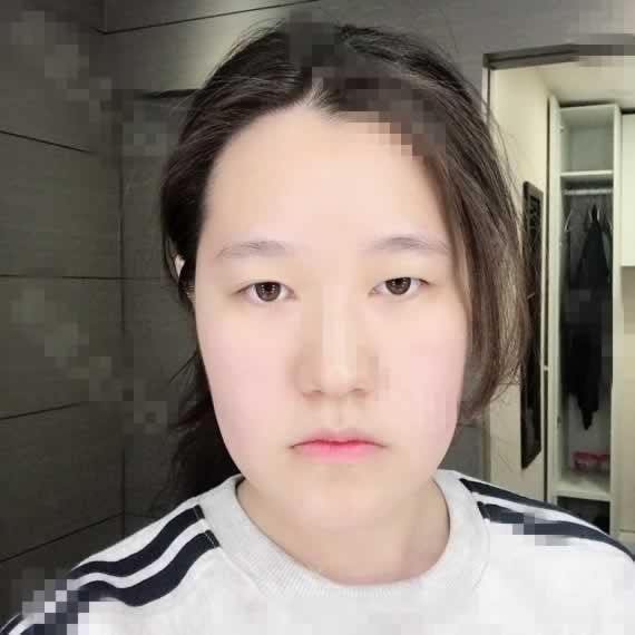 没想到济南鹏爱美容面部吸脂手术对我的改变挺大的,很满足。