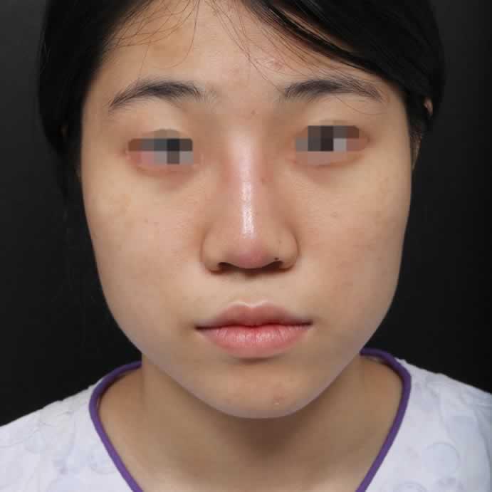 鼻部修复手术的效果真是的太好了,完全改变了我,现在每天都自信满满。