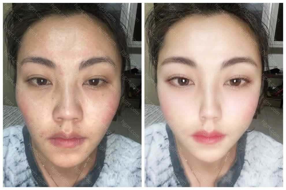 设计全脸脂肪填充15天恢复照片