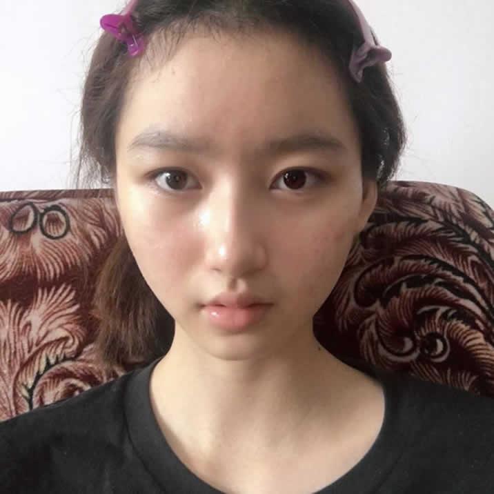 毫不吝啬分享我在泸州韩美整形做的自体脂肪填充全脸效果图。恢复中~~