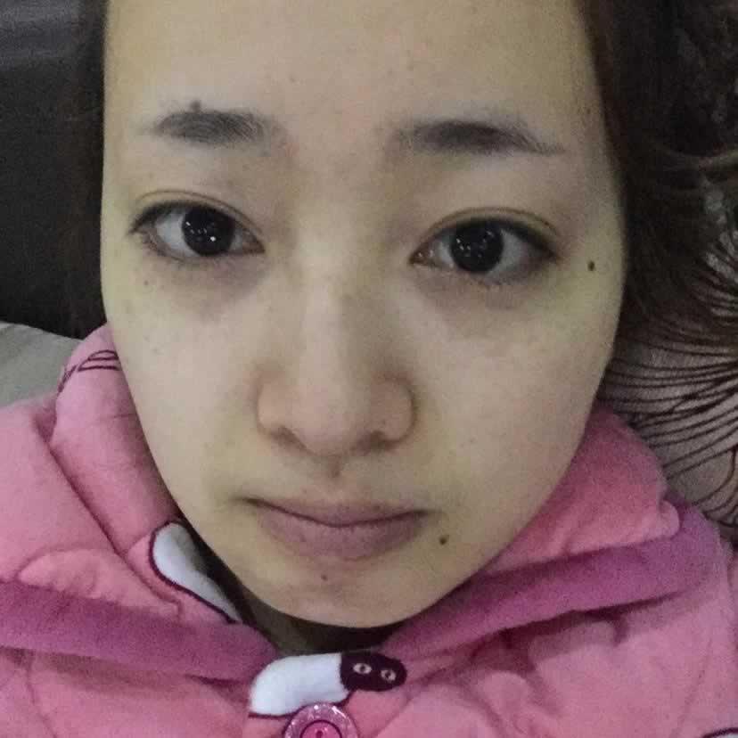 面部吸脂后一年脸下垂了,长沙美之峰医疗美容做完面部吸脂手术完全没有这个担心。
