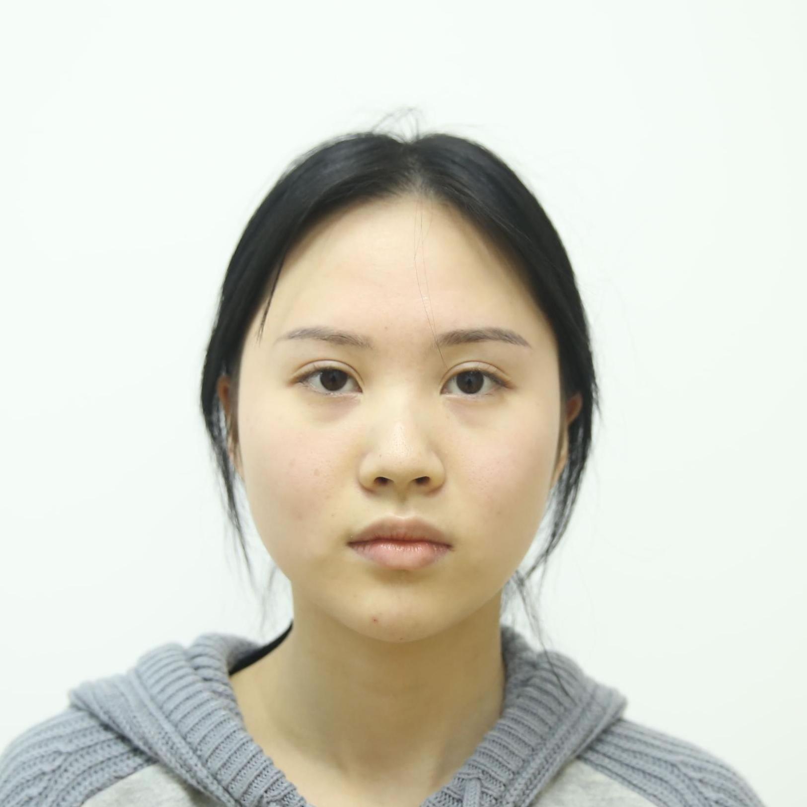 大脸的伤悲,看我到深圳恩吉娜医疗美容做哒射频溶脂瘦脸可不可