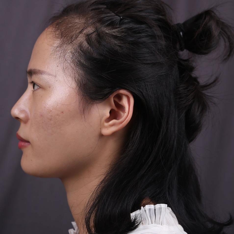 在太原丽都植发科做了种植发际线,术后效果你们来说